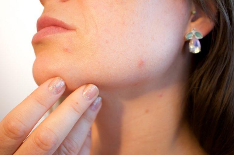 Espinillas, puntos negros y acné