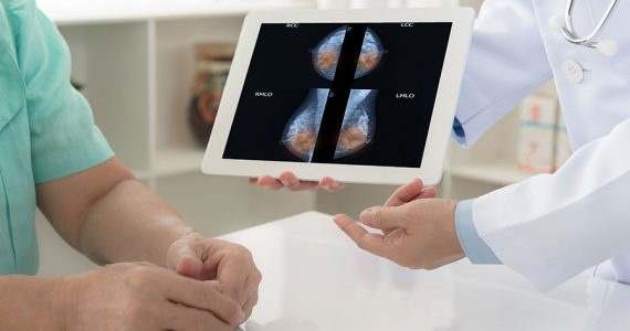 Estudio de cáncer de mama