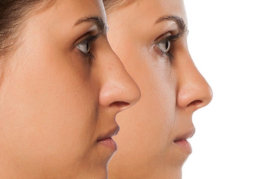 La rinoplastia es una de las cirugías estéticas más comunes.
