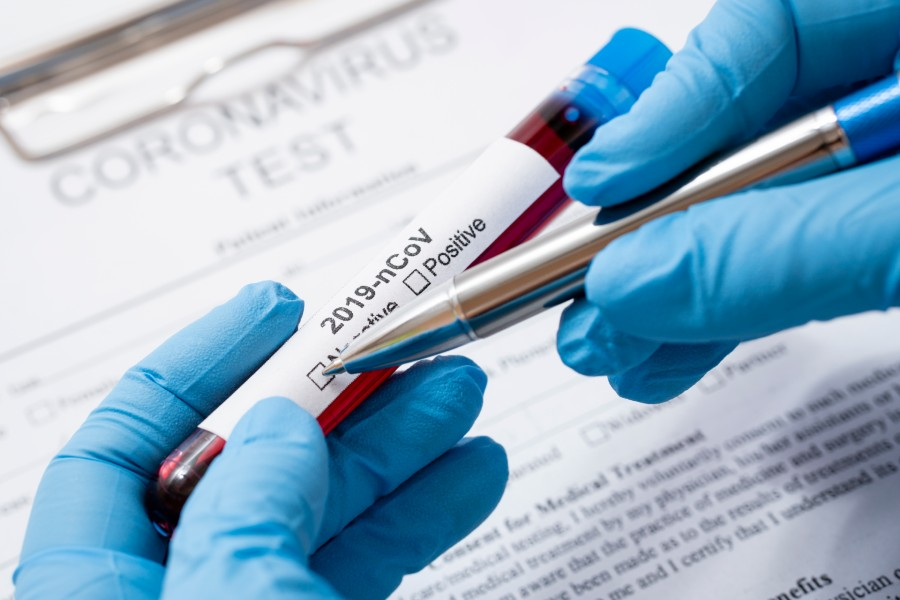 Francia investiga si la nicotina podría repeler al coronavirus