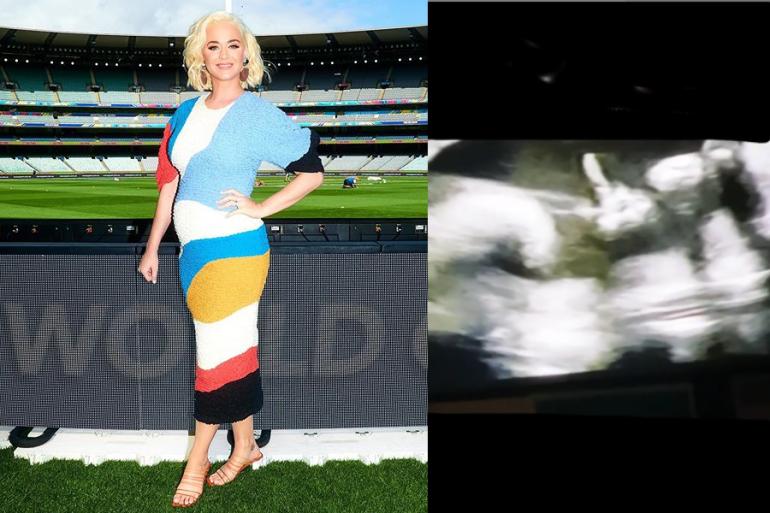 Katy Perry comparte el ultrasonido de su bebé saludando de una manera muy peculiar