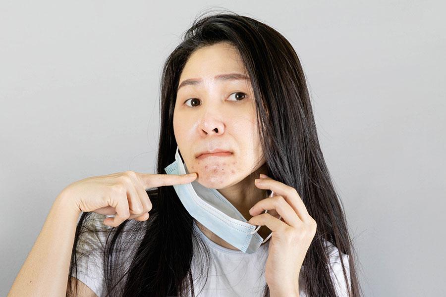 Piel con acné por uso de cubrebocas