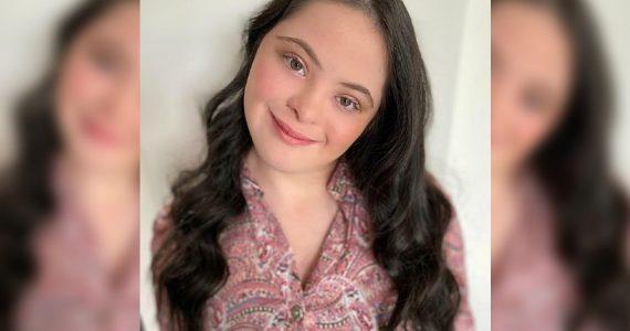 Ellie Goldstein: la modelo con síndrome de Down que se convirtió en el nuevo rostro de Gucci