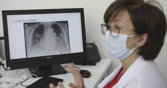bronquitis y asma pulmones