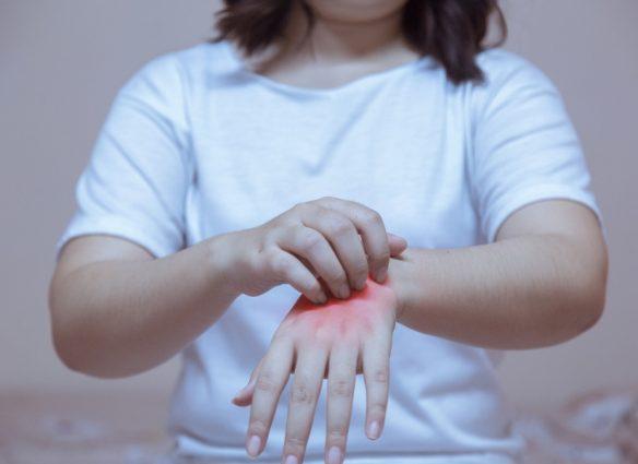 qué es la psoriasis y cual es su tratamiento