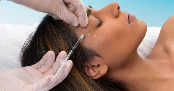Cómo se aplica, cuál es la mejor edad y más dudas básicas del botox aclaradas